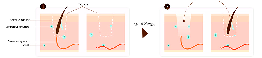 trasplante-capilar-tecnica-fue